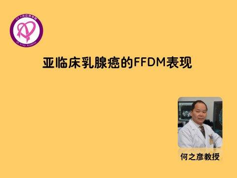 亚临床乳腺癌的FFDM表现
