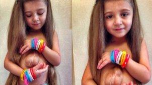 俄罗斯女孩天生心脏于胸腔外