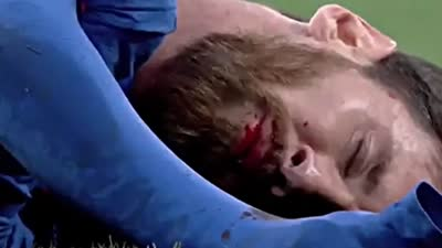 【片段】胆小慎入!梅西被肘击鲜血直流 就这样还打进2球绝杀皇马