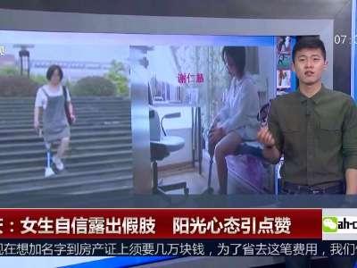 [视频]女大学生穿裙子露出假肢走红 阳光心态引点赞