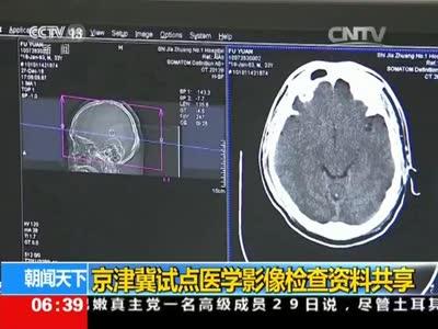 [视频]京津冀试点医学影像检查资料共享