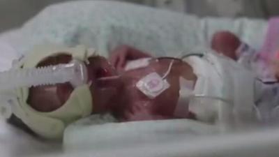 怀孕7月被迫生产 巴掌婴儿成长记